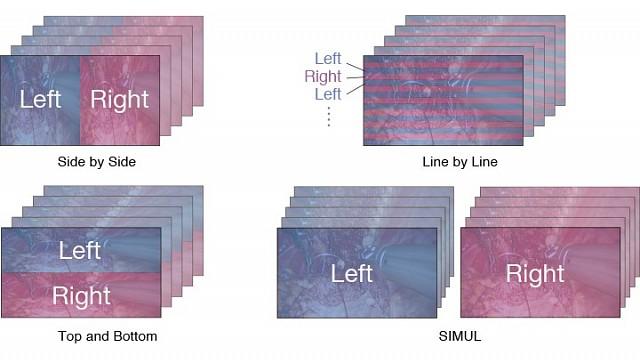 Monitor - Endo 3D - 3D-Formats