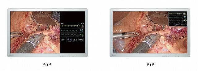 "Monitor - Endo 2D - PoP 32"""